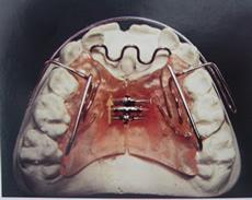 O que é Ortopedia Funcional dos Maxilares